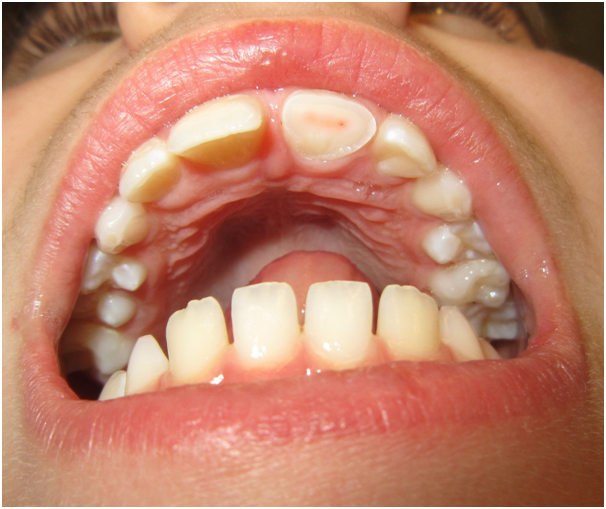 How Your Teeth Can Age You